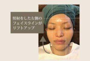 こちらは顔の左側だけ、ハイフ照射をを行った症例の写真です。